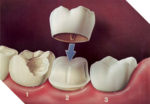 Dental Crown Stevenage